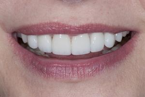 Nancy Veneers & Gum Lift S Post 6003
