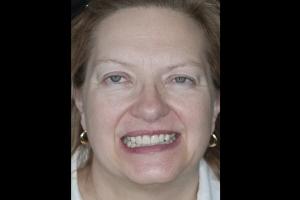 Nancy Gum Leveling F B4 4942
