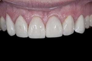 Nancy Gum Leveling X121 B4 4939
