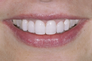 Neymi Teeth Whitening S Post 5249