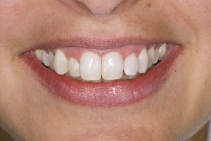 Neymi Teeth Whitening S B4 0037 2