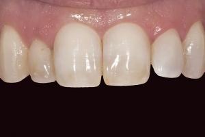 Neymi Teeth Whitening X121 B4 0039 (1)