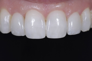 Neymi Teeth Whitening X121 Post 5272 (1)