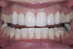 Neymi Invisalign R Post 5267