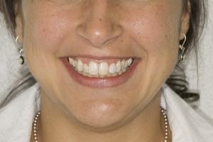 Neymi Laser Teeth Whitening F B4 0028
