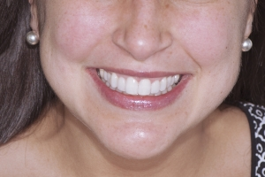 Neymi Laser Teeth Whitening F Post 5260
