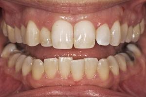 Neymi Laser Teeth Whitening R B4 0039