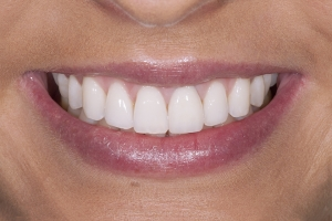 Nina Gum Graft S Post _2KL3254