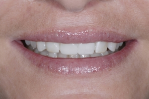 Nina S Grey Tooth Crown After 3366