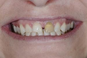 Nina S Grey Tooth Crown  Before 6989