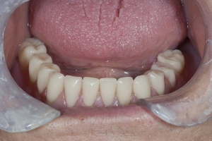 Lower-Snap-Implant-Denture-5a-0134