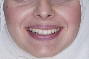 Noor Surgically Facilitated Braces F B4 1688