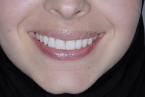 Noor Surgically Facilitated Braces F Post 4408 2 copy