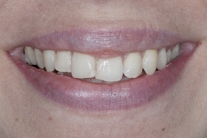 Noor Surgically Facilitated Braces S B4 1671