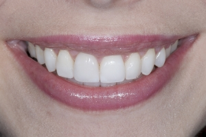 Noor Surgically Facilitated Braces S Post 2011 10-5 4679