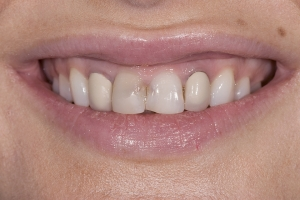 Oliana White Veneers S  Before 005