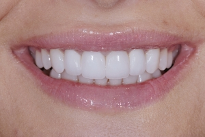 Oliana White Veneers S Post 156