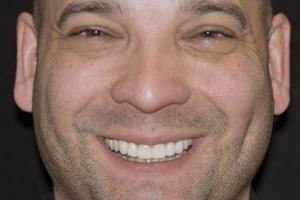 Otto Gummy Smile F Post 6844