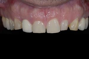 Otto Gummy Smile X121 B4 0406