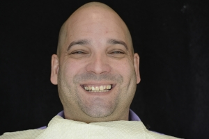 Otto Gummy Smile F B4 6768