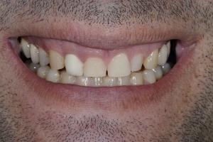 Otto Crowns & Gum Lift S B4 0405