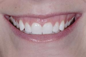 Phoebe Gummy Smile S B4 6283 2