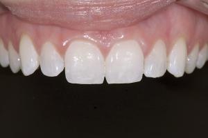 Phoebe Gummy Smile X121 B4 6197