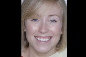 Phoebe Gummy Smile F  Before 6194