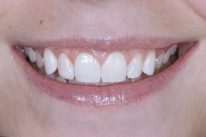 Phoebe Gummy Smile S Post 4103 (1)2