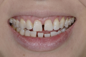 Ranning S Diastema  Before 6101