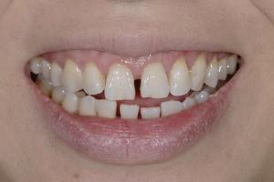 Ranning Tongue Trust S B4 6101