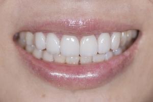 Ranning Tongue Trust S Post 6891
