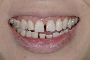 Ranning Veneers & Orthodontics S B4 6101