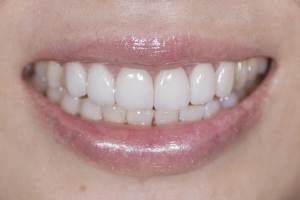 Ranning Veneers & Orthodontics S Post 6891