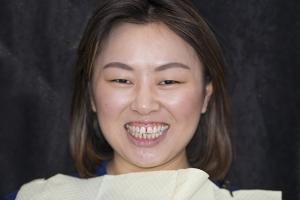 Ranning Veneers & Orthodontics F B4 6909