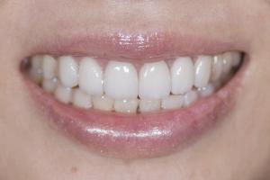 Ranning Veneers & Orthodontics S Post 6891