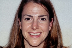 Rebecca F Diastema  Before