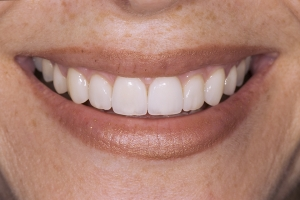 Rebecca S Diastema After