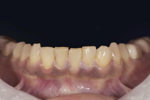 Reema Instant Orthodontics R B4 1 2