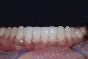 Reema Instant Orthodontics R Post 0046 b