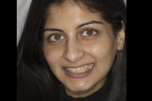 Reema Teeth Whitening F  Before