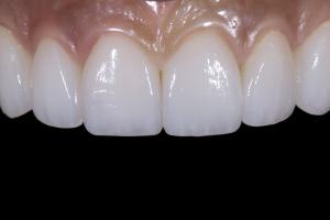Reema Teeth Whitening R Post 013 (2)