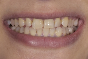 Reema Teeth Whitening S B4 2  (1)