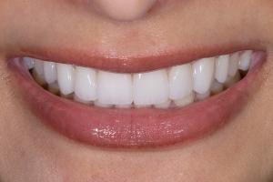 Reema Teeth Whitening S Post 039