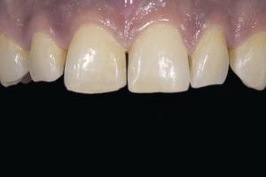 Reema Teeth Whitening R B4 12 (1)