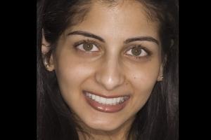 Reema Veneers & Orthodontics F After 047 copy