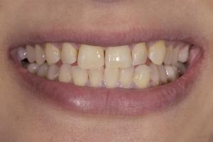 Reema Veneers & Orthodontics S B4 2