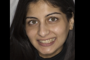 Reema Veneers & Orthodontics F  Before
