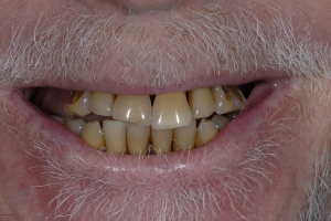 Richard Implant Bridge Front S B4 6382