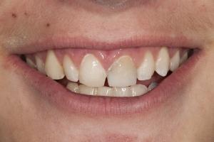 Robert S Grey Tooth Crown  Before 0086